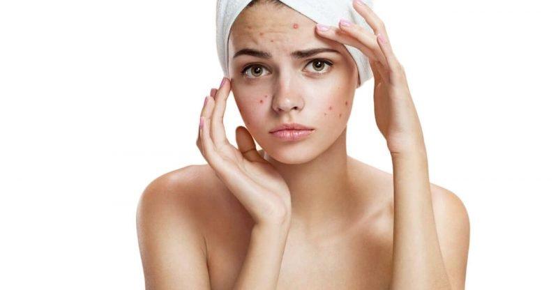 Descifrando el enigma del acné en cuarentena